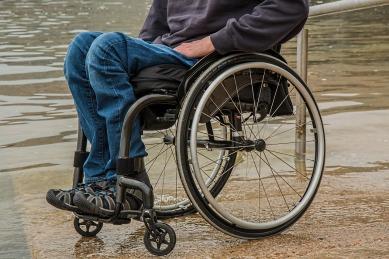 broken leg.jpg
